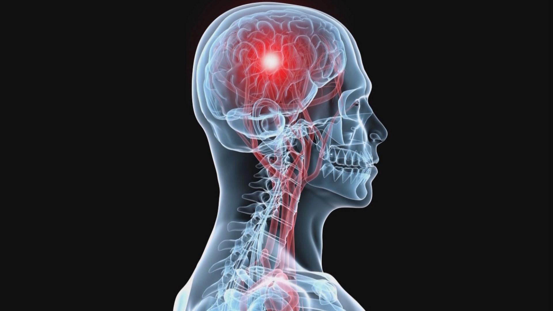 علائمی که قبل از سکتهی مغزی در بدن رخ میدهد