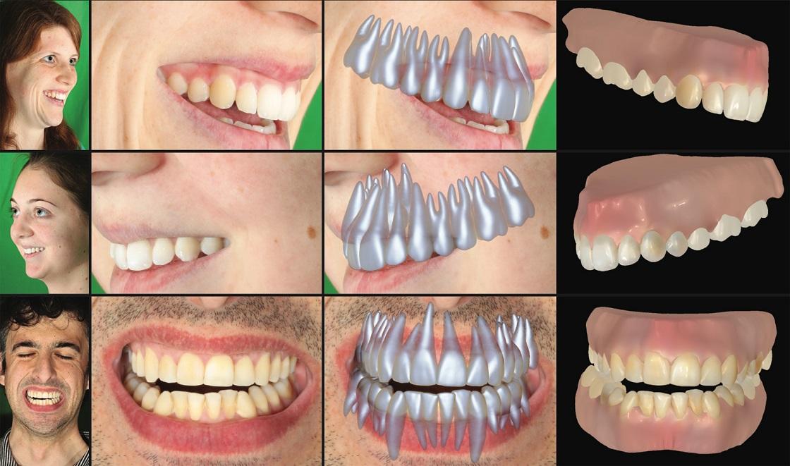 دندان دیجیتالی هم در راه است