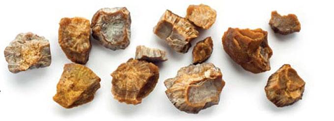رژیم غذایی مناسب برای کلیههای سنگ ساز
