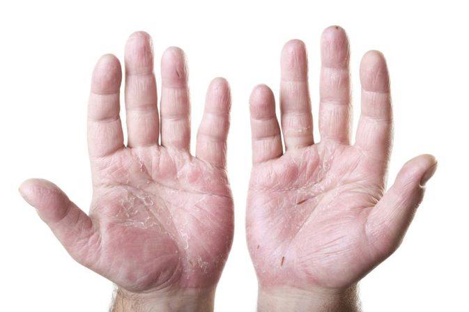 درمان خشکی پوست در منزل
