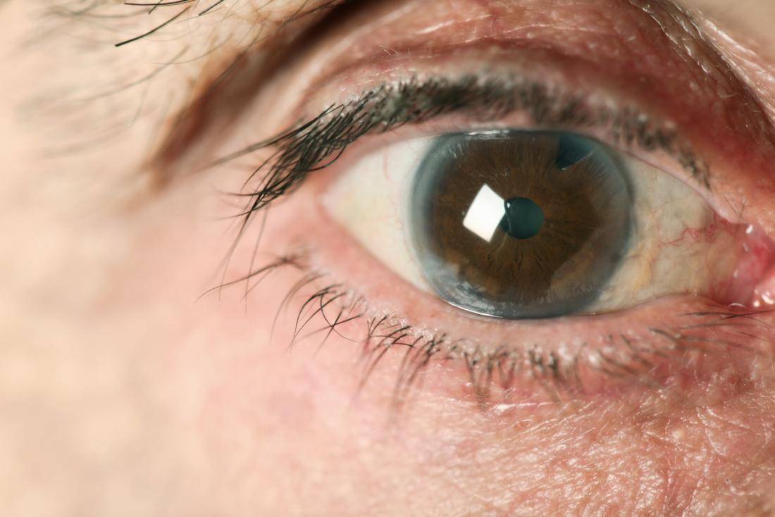 پروتئینهای طبیعی از نابینایی جلوگیری میکنند