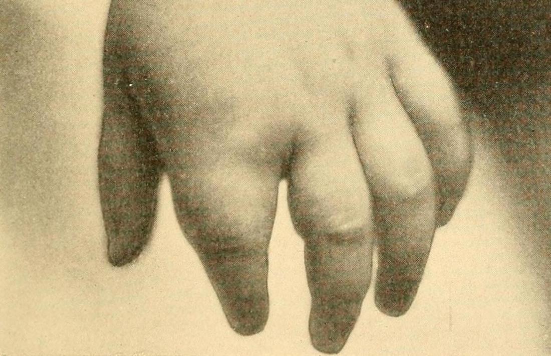 علت دکتیلیت (انگشت سوسیسی) چیست؟