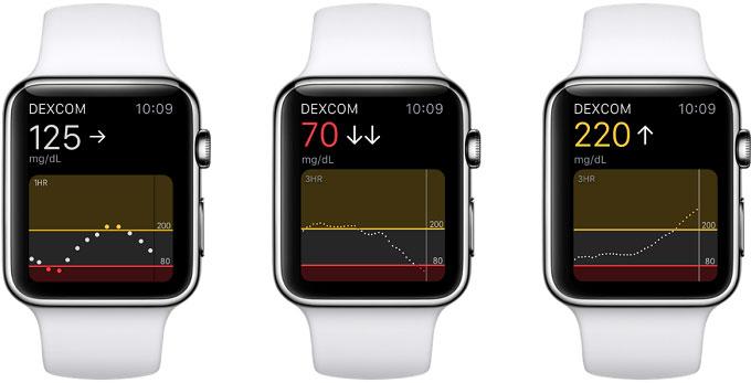 اپل واچ به زودی می تواند سطح گلوکز خون را اندازه بگیرد