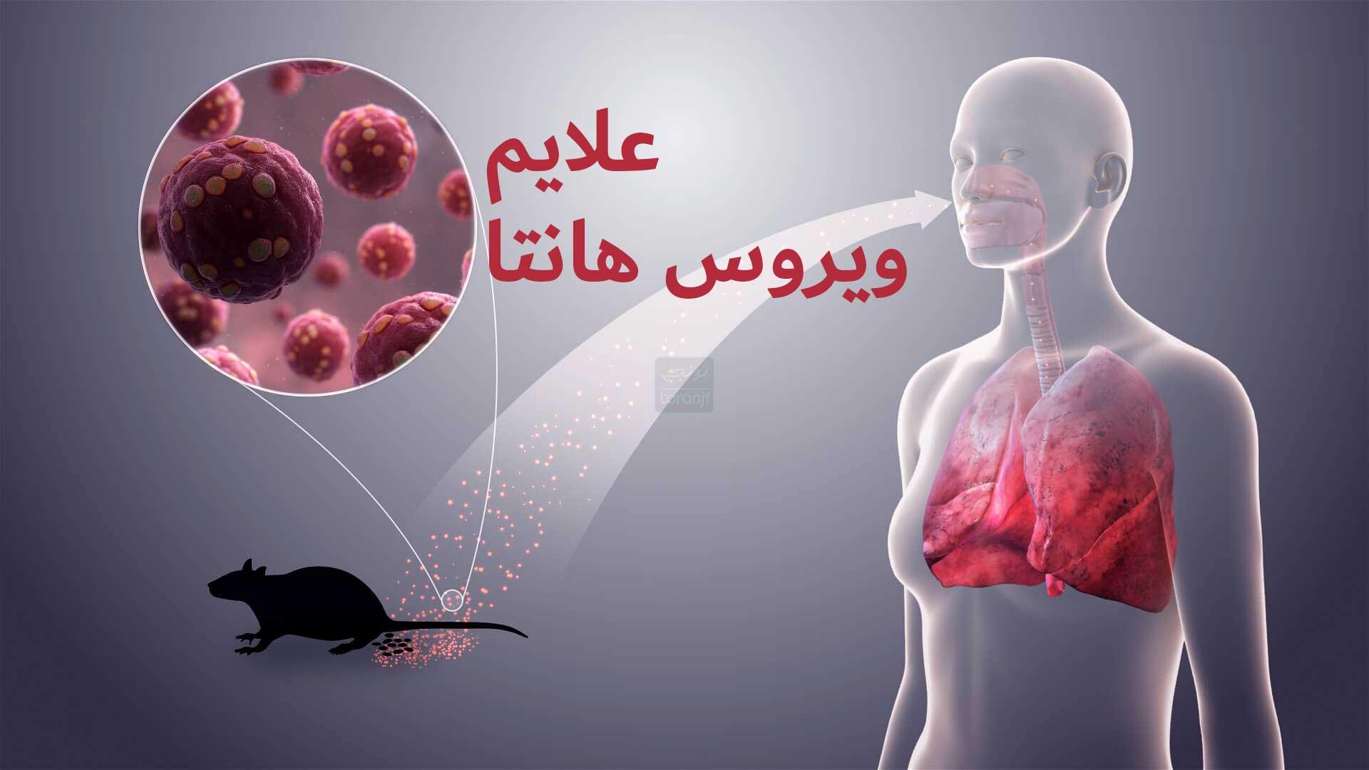 علائم ویروس هانتا