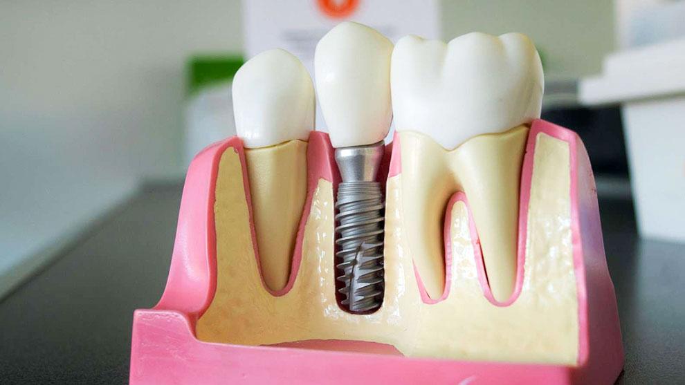 کلینیک دندانپزشکی زیبادنت، بهترین در دیجیتال ایمپلنت