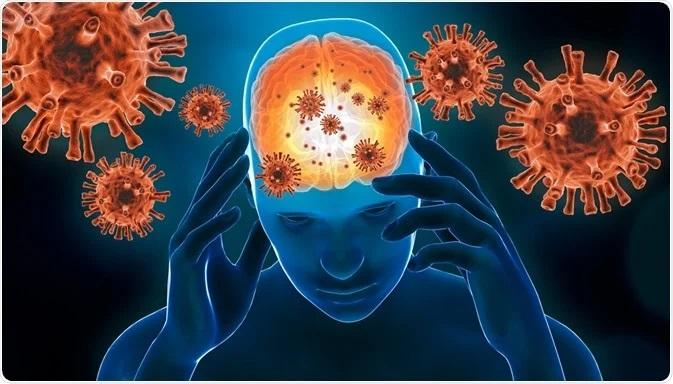 کرونا و عوارض عصبی