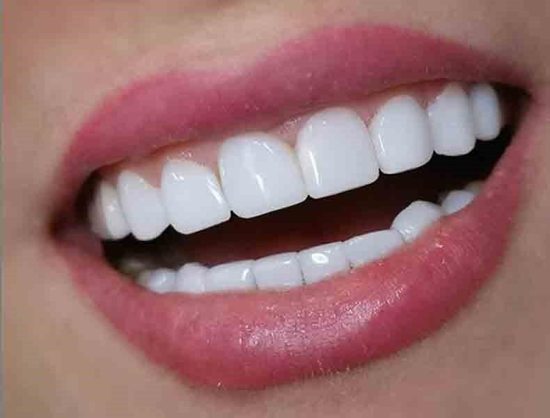 کاشت دندان و زیبایی